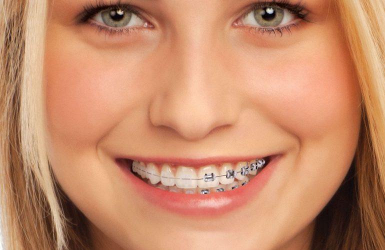 imatge de brackets-ceràmica-ortodòncia-clínica-dental-madrid